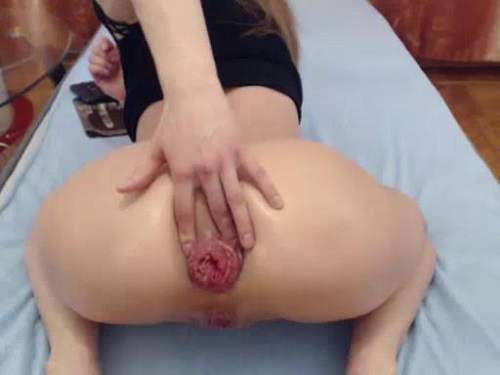 Falls huge anal prolapse in doggy style pose webcam girl