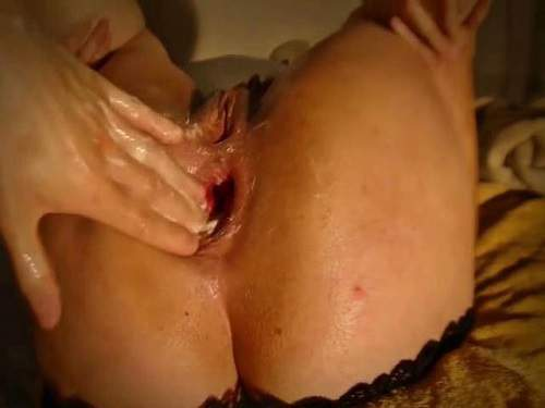 Wife gets anal fisting to sweet prolapse closeup homemade