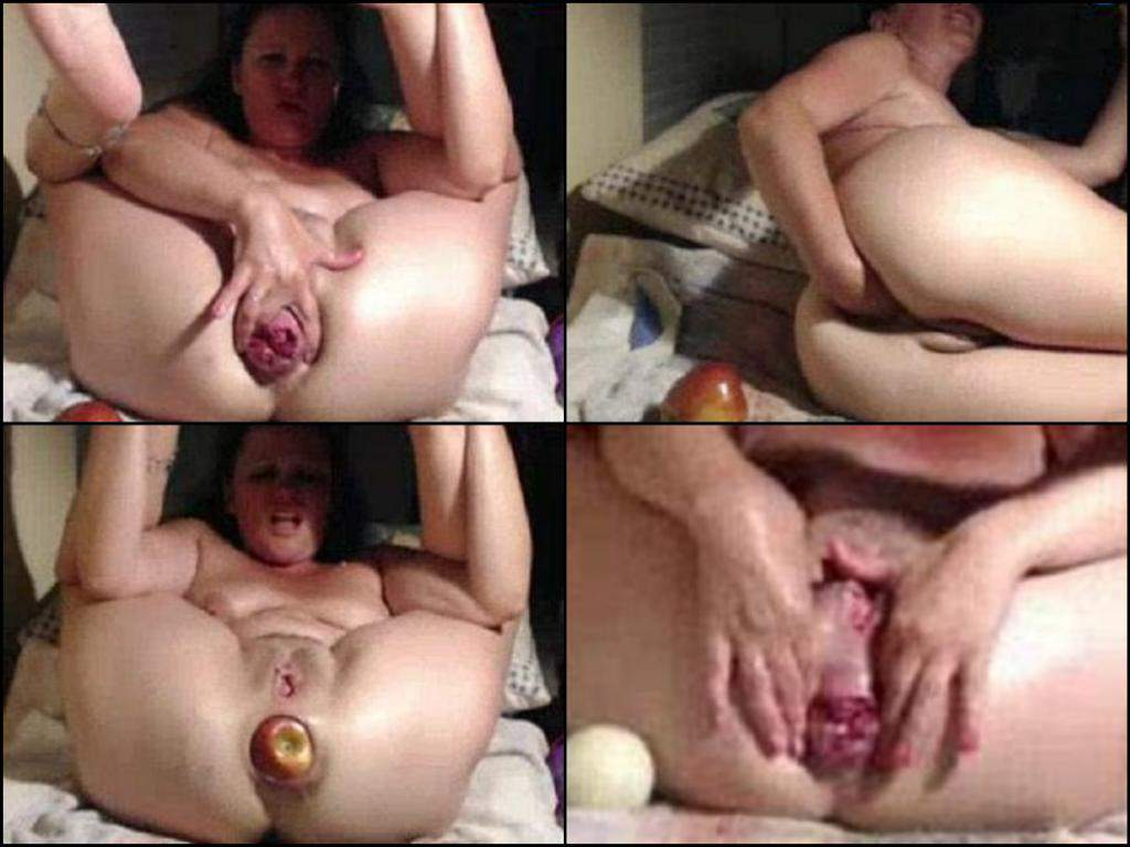 billiard ball full anal,giant apple anal penetration,big rosebutt asshole mature webcam,webcam booty milf anal insertion