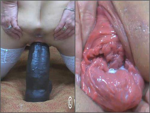 Prolapse porn – Abuse MILF Hottabbycat pussy prolapse loose with BBC dildo