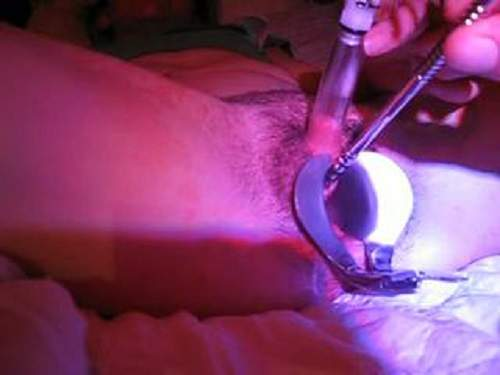 Speculum – Wife with hairy pussy clit pumping and peehole fuck