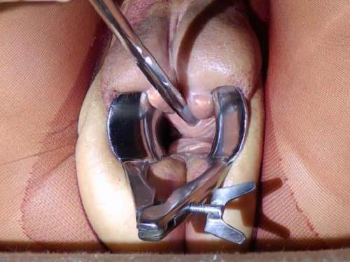 Pump – Speculum in shocking pumped pussy and peehole fuck