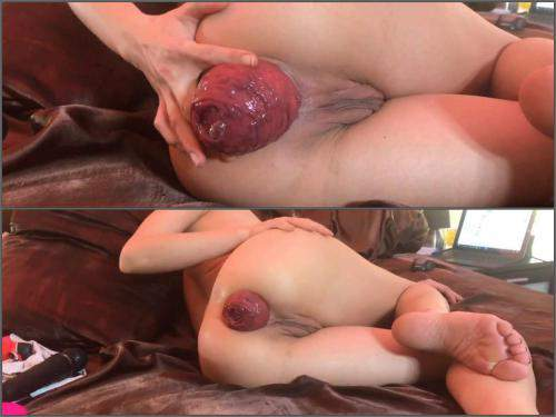 Amateur – Amateur skinny wife show her really shocking size prolapse anal