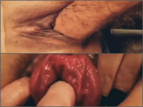 Prolapse porn – Amateur pussy and anal prolapse loose during hard fisting sex POV