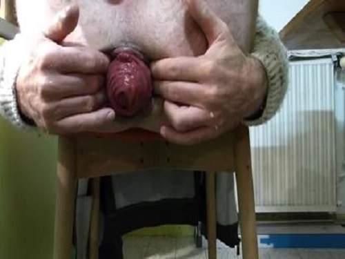 Prolapse – Anus prolapse fantastic sized hot male webcam